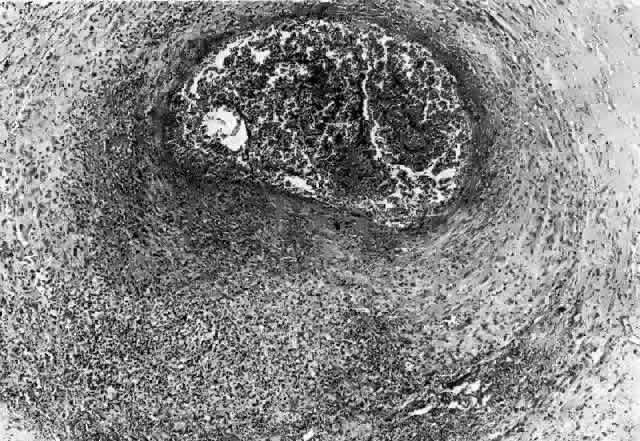 結節性多発動脈炎 (polyarteritis nodosa: PAN)|慶應義塾大学病院 KOMPAS