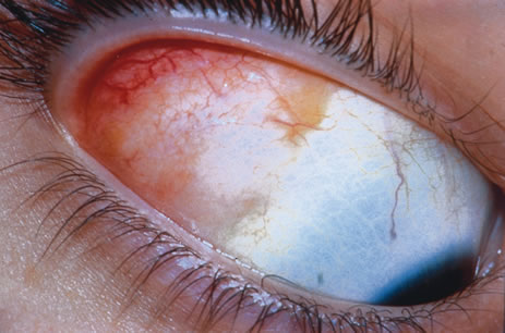 Fig 3 dermolipoma in the superotemporal conjunctival fornix