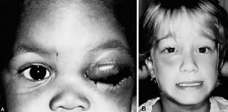 A. Two-year-old African-American girl with preseptal cellulitis due to type ...
