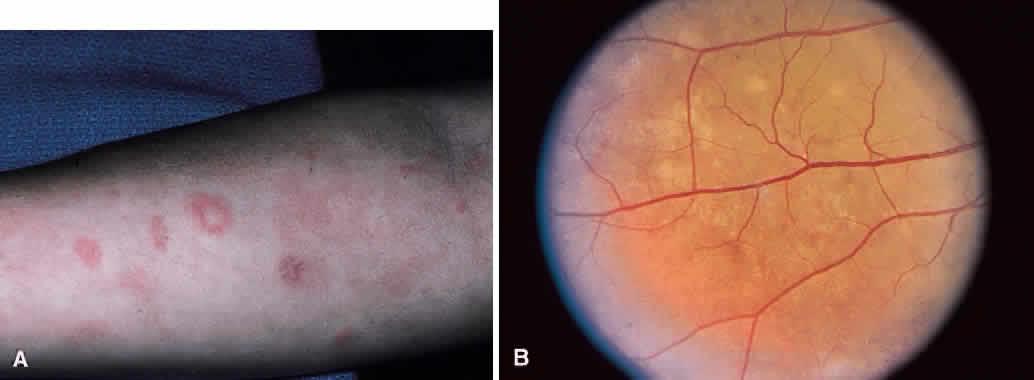 Leukocytoclastic Vasculitis