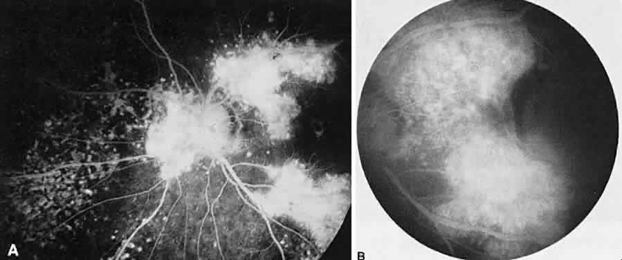 Volume 4, Chapter 57. Ocular Angiography in Uveitis