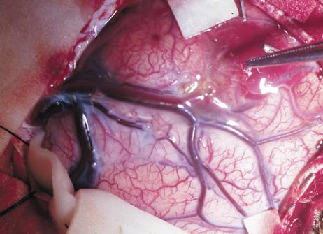 leptomeningeal angioma