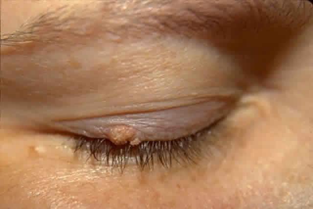 Periocular papillomas, Papilloma nasal cavity icd 10 - fotobiennale.ro