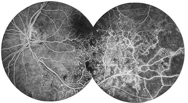 AccessLange General Ophthalmology Chapter 15 Ocular